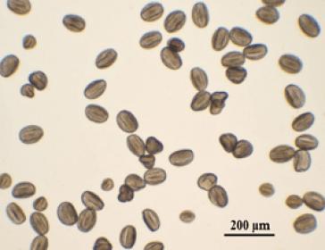 Figura 1: Euphorbia.pulcherrrima-polen
