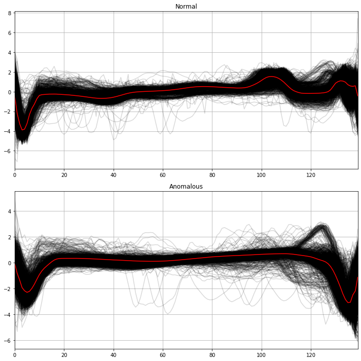 Figura 6. Secuencias del training dataset para latidos normales (arriba) y anómalos (abajo) para TimeSeriesKMeans. En rojo, se observan los centroides de los dos clusters.