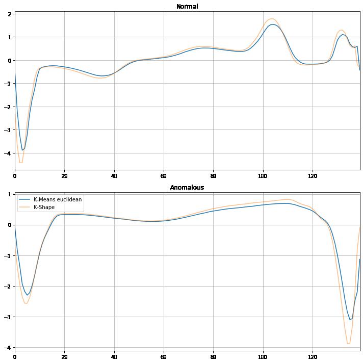 Figura 8. Perfiles de los centroides para latidos normales (arriba) y anómalos (abajo) con TimeSeriesKMeans (azul) y KShape (amarillo).