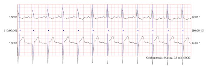 Figura 1. Muestra de electrocardiogramas de ECG5000. Fuente.